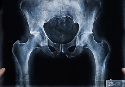 ml_x-ray-hip