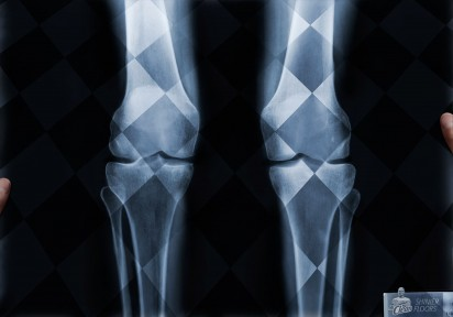 ml_x-ray-knees