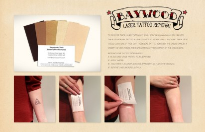 baywood clinic laser tattoo removal